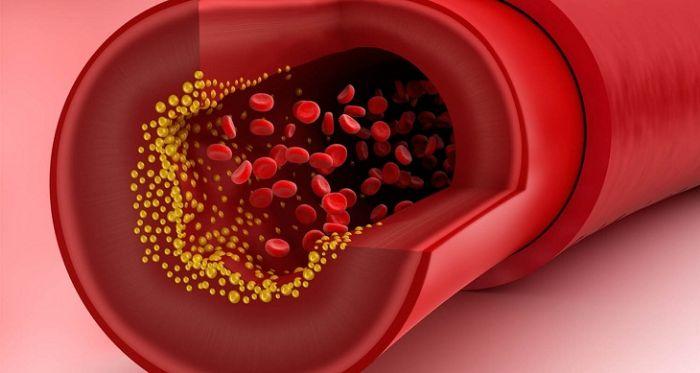 Nguyên nhân và cách chữa trị bệnh Xơ vữa Mạch máu